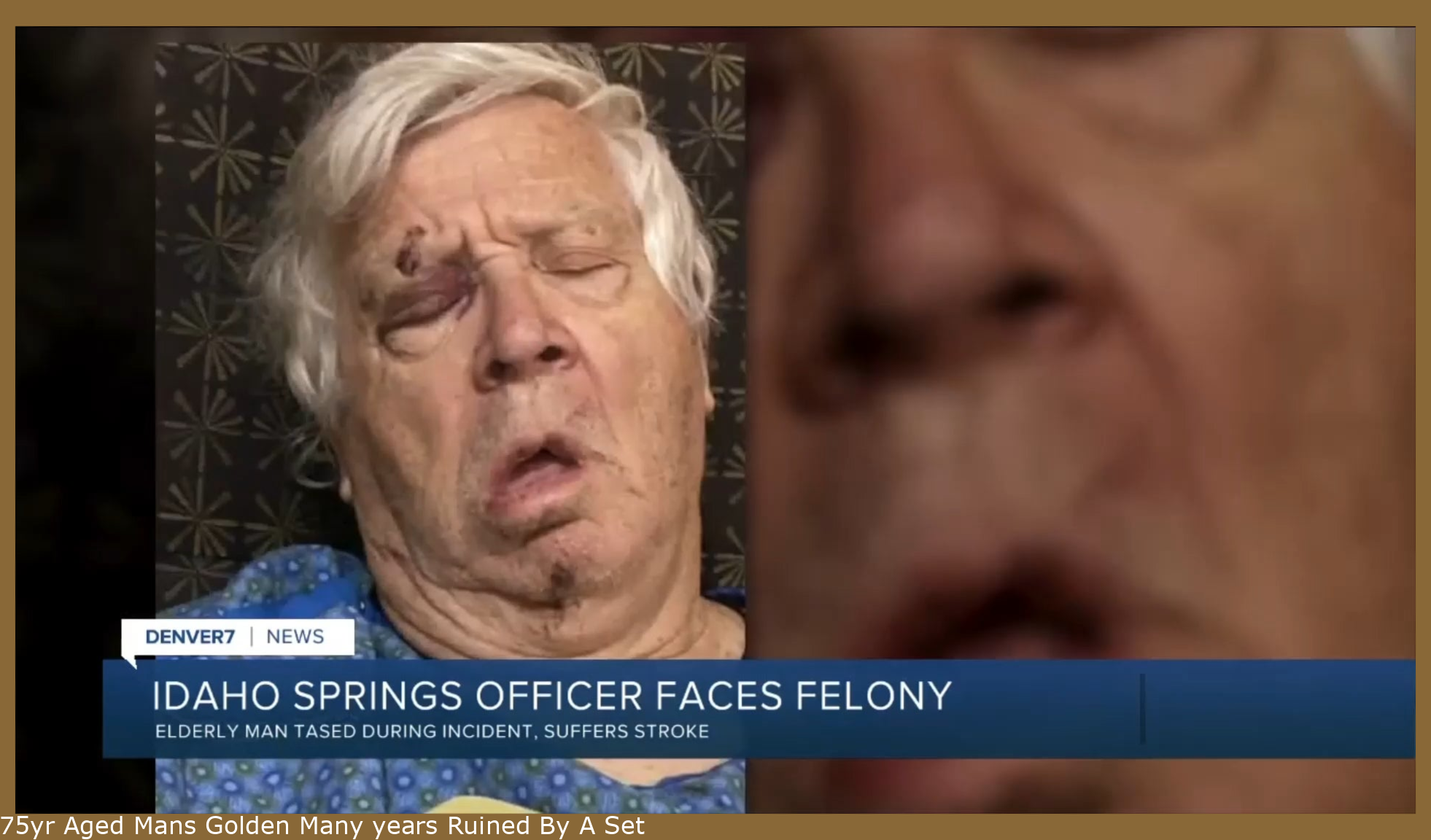75yr Old Mans Golden Years Ruined By A Trigger Happy Cop Armed With A Taser In Idaho Springs